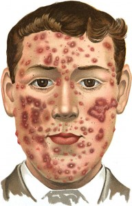 491px-An_introduction_to_dermatology_(1905)_Acne_(indurta)