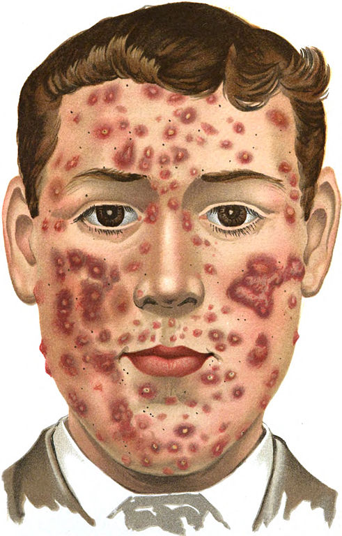 Can Live Bacteria Cure Acne Episode 95 border=